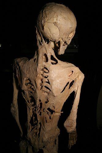 Fibrodysplasia_ossificans_progressiva